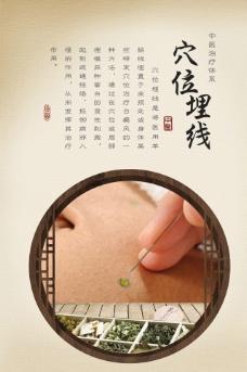 中医展板穴位埋线图片